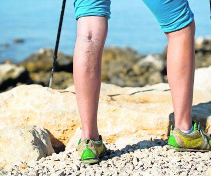 Are your legs still swollen?