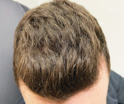 PRP is a medically-proven way to regrow hair using the body's own platelet-rich plasma