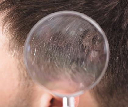 Jeffrey Paul's Hair & Scalp Specialists can help you correct, prevent or restore hereditary hair loss