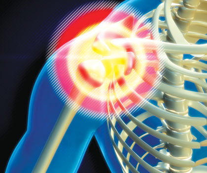 Finding relief from shoulder pain isn't a one-size-fits-all solution