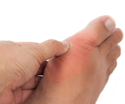 Natural support for gout