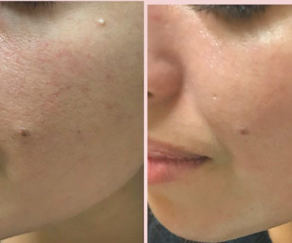 Put your best face forward with help from Smith Cosmetic Laser Surgery